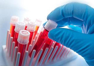 Оперштаб: В 1,5 раза за неделю снизился темп прироста заболевших коронавирусом в Приморье