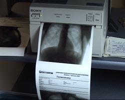 Количество больных туберкулёзом увеличивается месяц от месяца